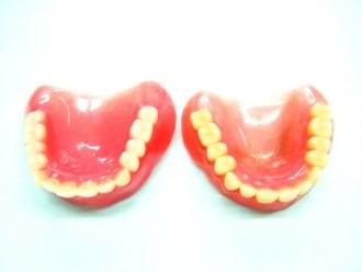 DLCコート義歯